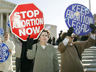 The controversy issue of abortion in the united states